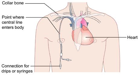 Hickman_Catheters